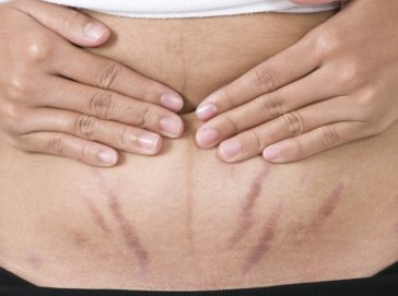 consigli per combattere le smagliature sulla pancia