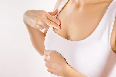 cause e rimedi delle smagliature al seno